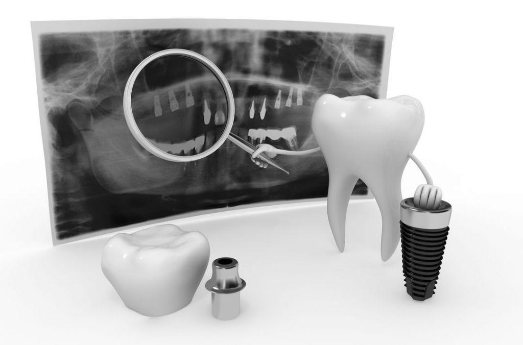 fogászati implantátum anyaga