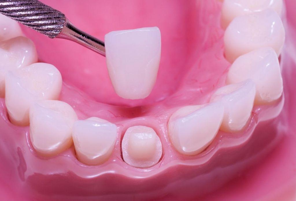 A fogászati implantátum anyaga általában titán vagy cirkon