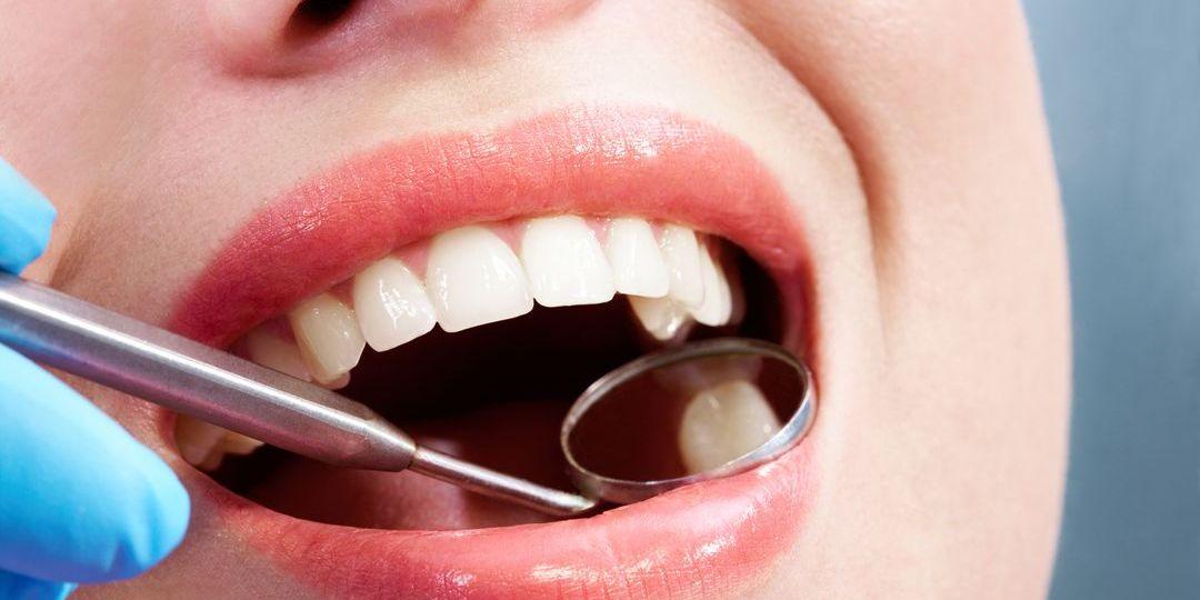 fogorvos fogkezelés